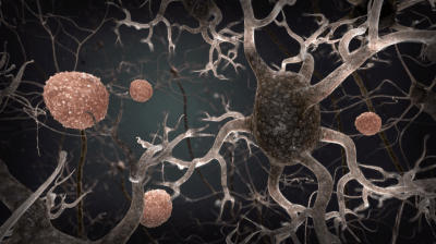 Resveratrol Stabilizes Amyloid in Alzheimer's
