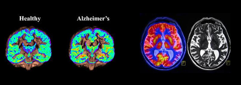 Alzheimer's: Overwhelmed How Can I Help Senior Transition Move Manager Northern Virginia